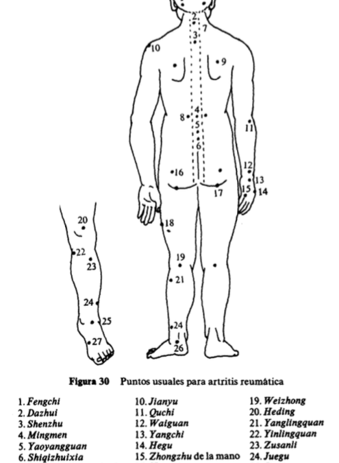 Tratamiento de la artritis reumática mediante acupuntura